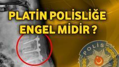 Platin Polisliğe Engel midir ?