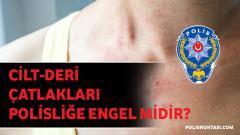 Cilt-Deri Çatlakları Polisliğe Engel Midir?